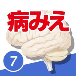 病気がみえる vol.7脳・神経(第1版)