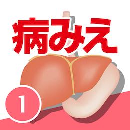 病気がみえる vol.1消化器(第5版)