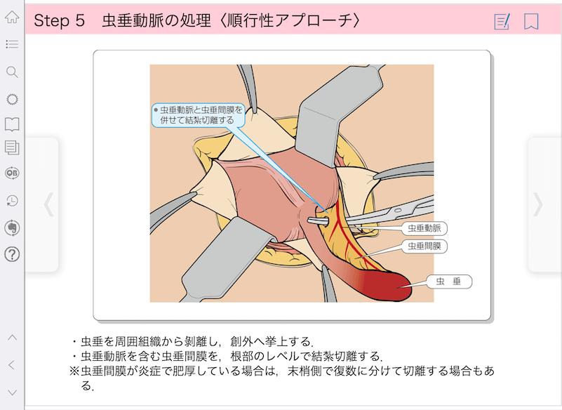 手術NAVI_急性虫垂炎画面サンプル